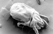 A scanning electron micrograph of a female dust mite [ID:11085]