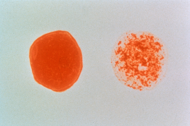 HIV-positive blood cell vs HIV-negative Blood Cell
