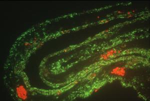 CAM Test Showing the Virulence of Newcastle Virus