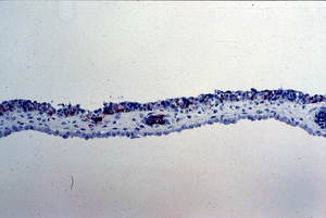 Newcastle Disease Virus