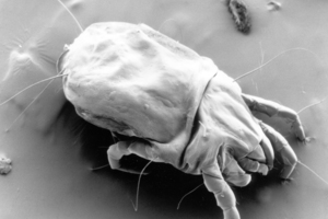 A scanning electron micrograph of a female dust mite